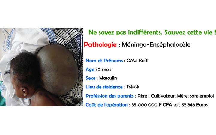 GAVI Koffi (meningo encephalocèle)