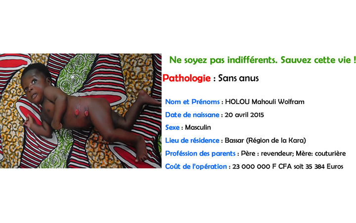 Holou mawuli (sans anus)