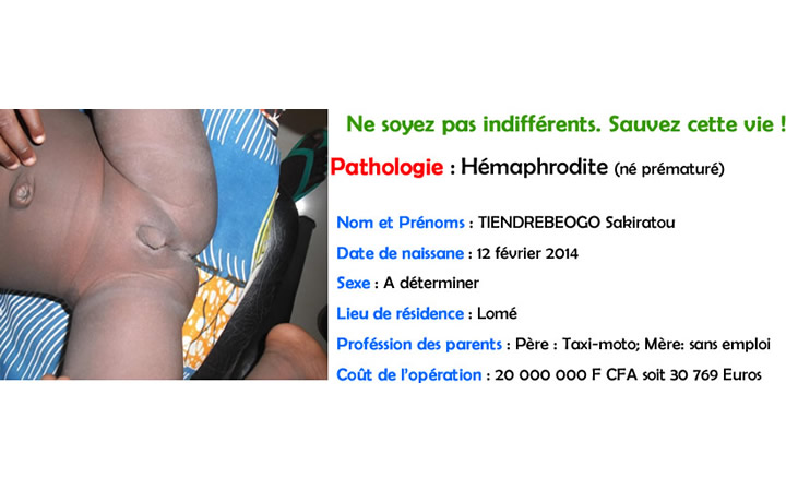 TIENDREBEOGO Sakiratou (hemaphrodite)